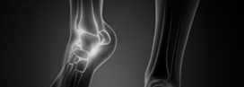 Bone Disorders Services