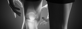 Degenerative Joint Disorders Services